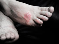 How to Treat Dry Skin on Feet
